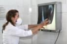Tuberculose mata 4.500 pessoas todos os dias no mundo