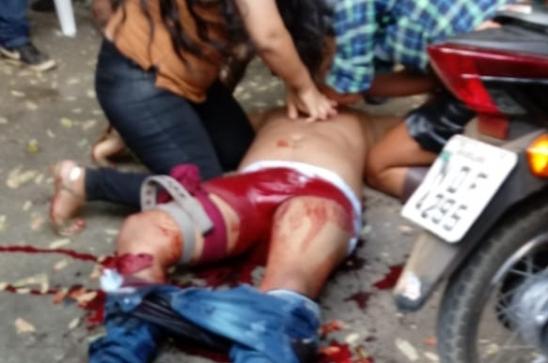 Homem é baleado na perna em disparo acidental na Avenida Tancredo Neves em Ariquemes, RO