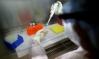 Anvisa permite teste clínico para tratar pneumonia causada por covid